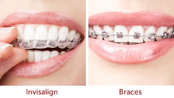 taglia 7 design popolare Nuovi Prodotti Allineare i denti storti con l'apparecchio invisibile ...